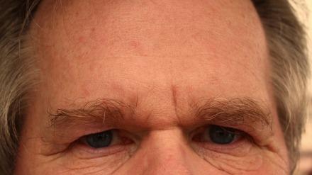 forehead-65059_960_720